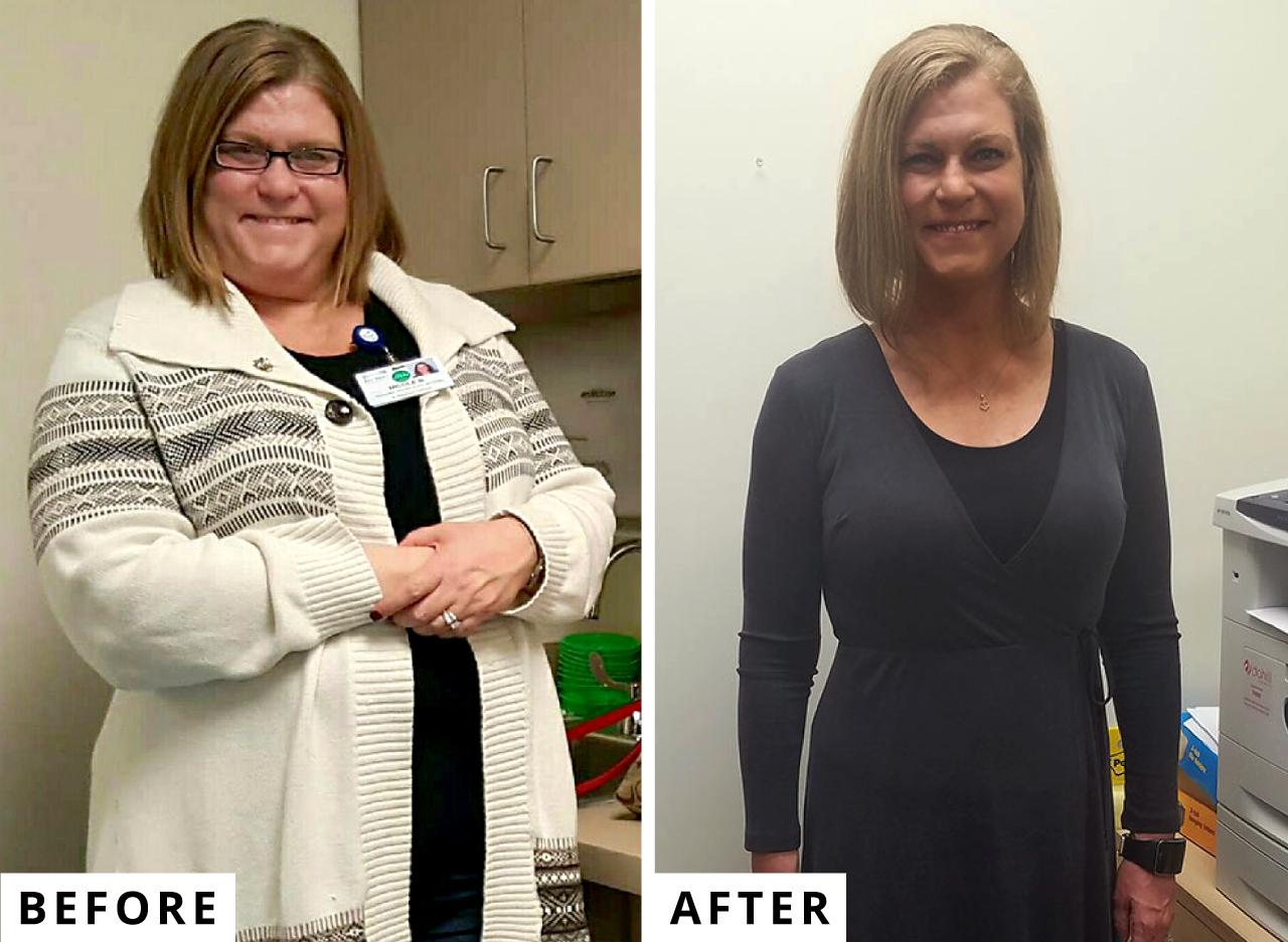 Weight Loss Surgery Center Weight Loss Surgery Testimonials